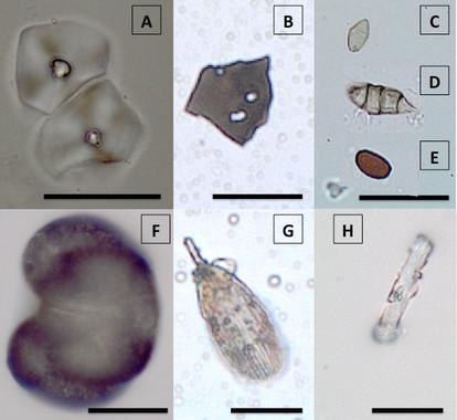 Microfósiles extraídos de la placa dental de individuos de la Cueva de Qesem (Israel)